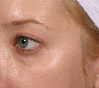 Restylane under eyes before 137841