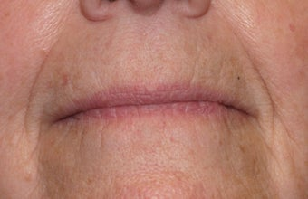 Restylane injection to nasolabial folds