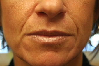 Radiesse and Restylane to the nasolabial folds
