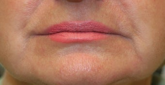 Restylane around the mouth before 240869