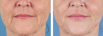 Dermal Filler to Wrinkles before 253626