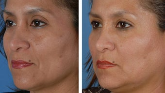 Filler injections to the cheek folds before 253966