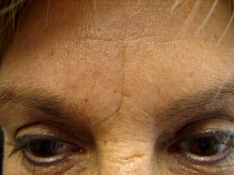 Immediate Improvement of a Forehead Wrinkle before 271680