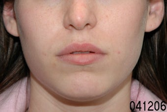 Lip Augmentation before 273491