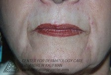 Dermal Filler Injection to Marionette and Accessory Smile Lines before 315163
