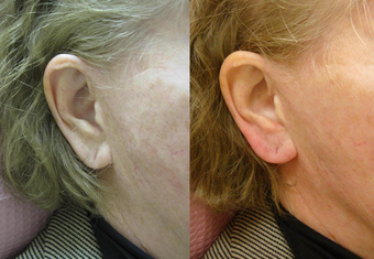 Restylane Ear Rejuvenation before 390192