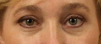 Lower Eyelid/Tear-Trough Restyalne before 467136