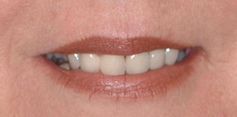Smokers lines treated with Restylane and Botox in lips before 52827