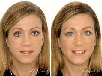 Before and after restylane full face before 6275