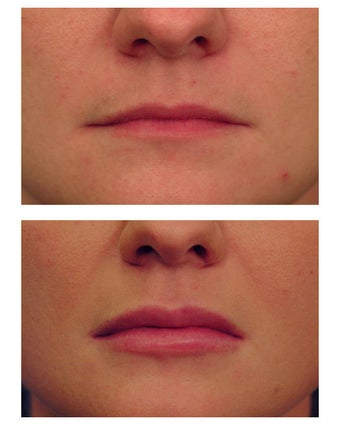 Restylane for lip augmentation before 82764