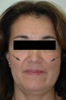 Restylane treatment for laugh lines   before 91057