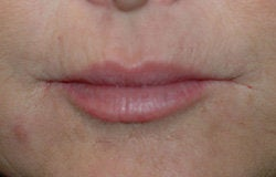 Restylane injections for upper lip lines  before 91656