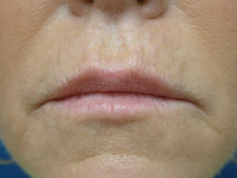 Restylane (Filler) before 93213