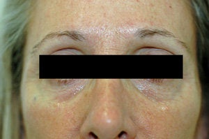 Restylane for dark circles under the eyes before 93362