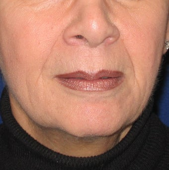 Restylane Treatment for Lips and Nasolabial Folds before 96419