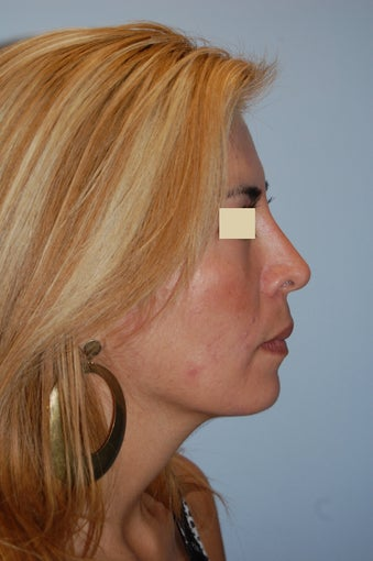 Revision Rhinoplasty  after 166041