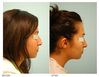 Revision/Corrective Rhinoplasty before 136574
