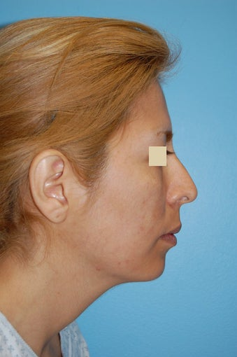 Revision Rhinoplasty  before 166041