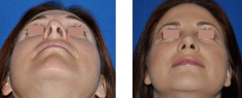 Revision Rhinoplasty before 293545