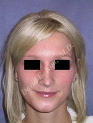 Rhinoplasty after 312843