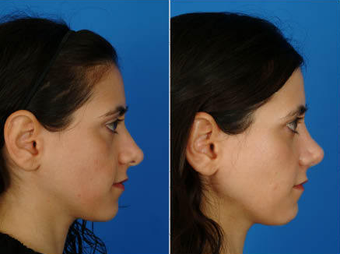 Nose Surgery (Revision Rhinoplasty) after 333094