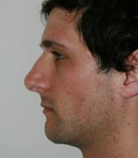Rhinoplasty revision after 380423