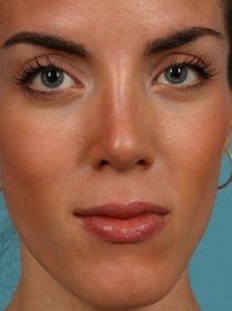 Revision Rhinoplasty after 581089
