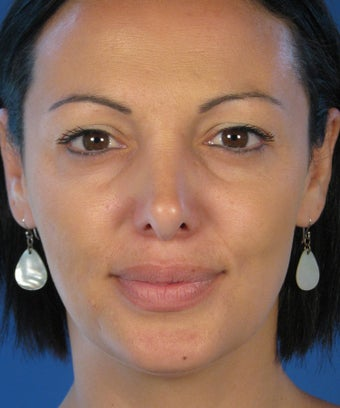 Revision Rhinoplasty before 410783
