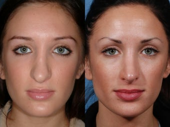 Revision rhinoplasty before 435947