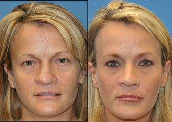 revision rhinoplasty before 450428