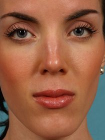 Revision Rhinoplasty before 581089