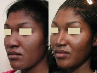 African American Rhinoplasty after 137748