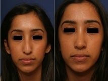Rhinoplasty after 143650