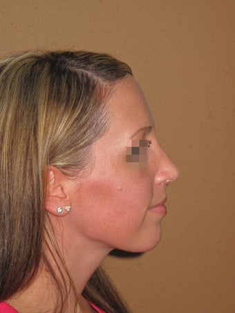 rhinoplasty after 270734