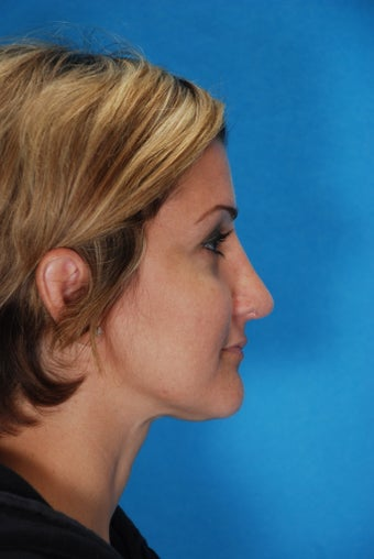 Rhinoplasty (nose job, nasal surgery) after 346935