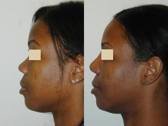 African American Rhinoplasty before 137714