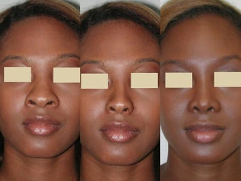 African American Rhinoplasty before 137732