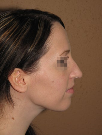 rhinoplasty before 270734