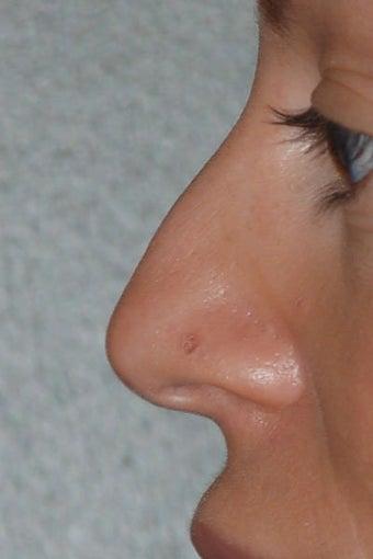 Rhinoplasty before 271669