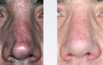 Rhinoplasty Nasal Reconstruction before 346256