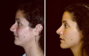 28 year old female, rhinoplasty before 629088