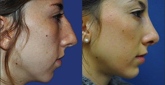 Rhinoplasty before 633433
