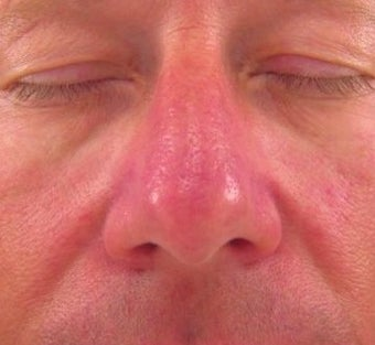 Vbeam for Rosacea Treatment after 374581
