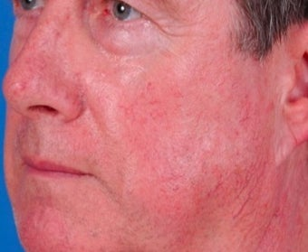 Vbeam laser rosacea treatment before 374582