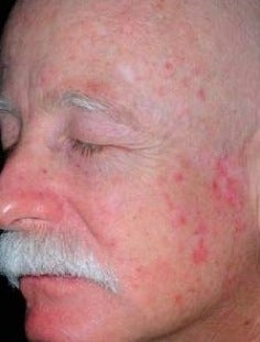PDT for rosacea before 376140