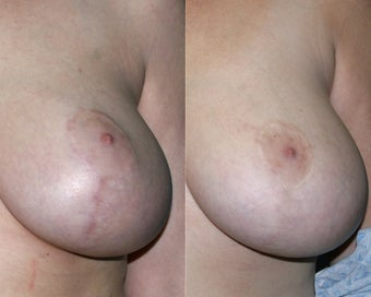 Fraxel Restore and Vbeam Perfecta treatments for Breast Surgery Scars before 130020