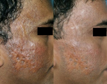 Fraxel Restore treatment of Facial Scars before 131005