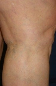 Leg Vein Sclerotherapy after 370428