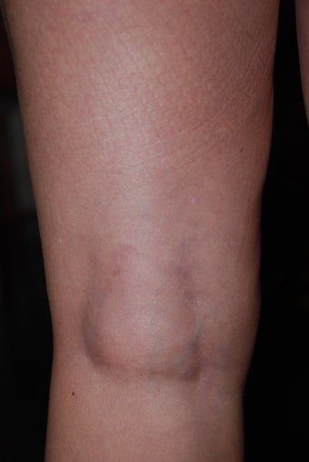 Sclerotherapy after 470090