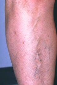 Sclerotherapy on Leg before 370427